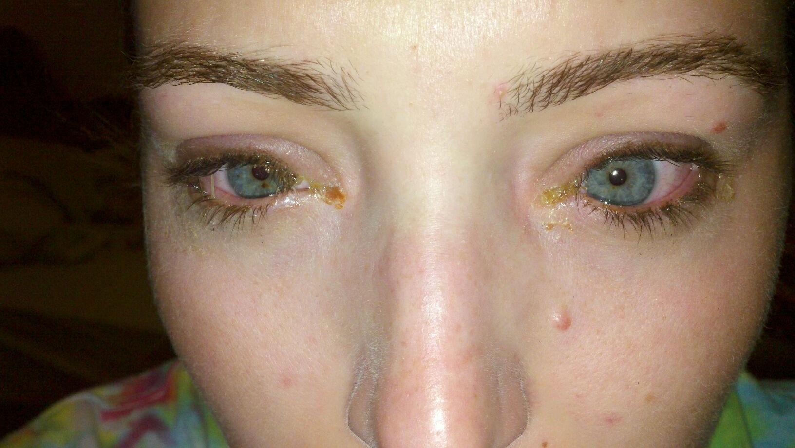 how to get pink eye medicine